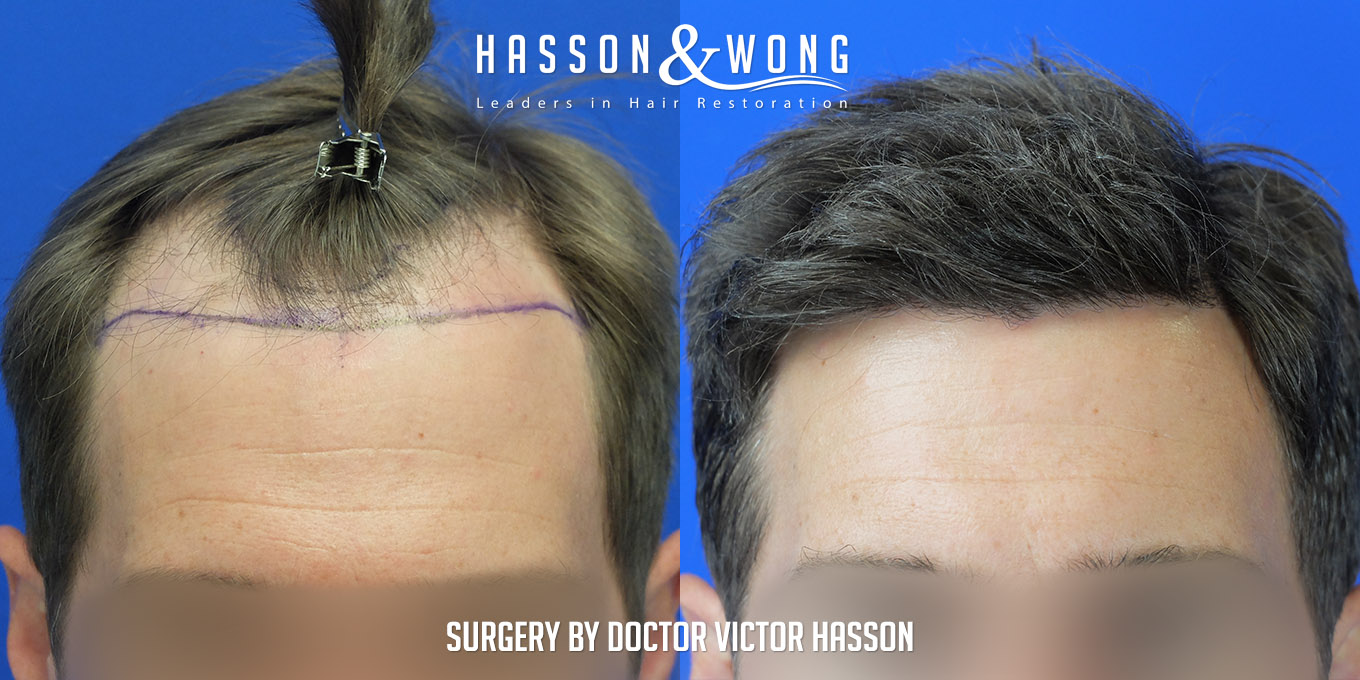 FUE hair transplant before and side by side of hairline after 4035 grafts