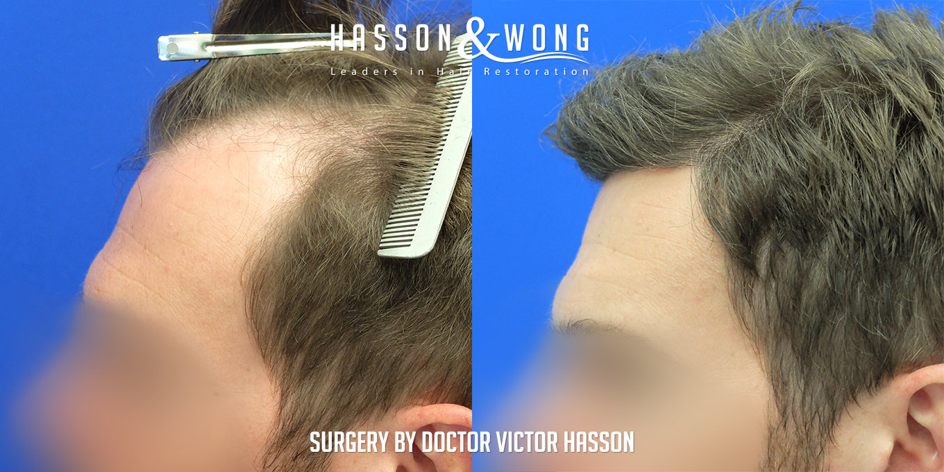 FUE hair transplant before and side by side closeup of left temple after 4035 grafts