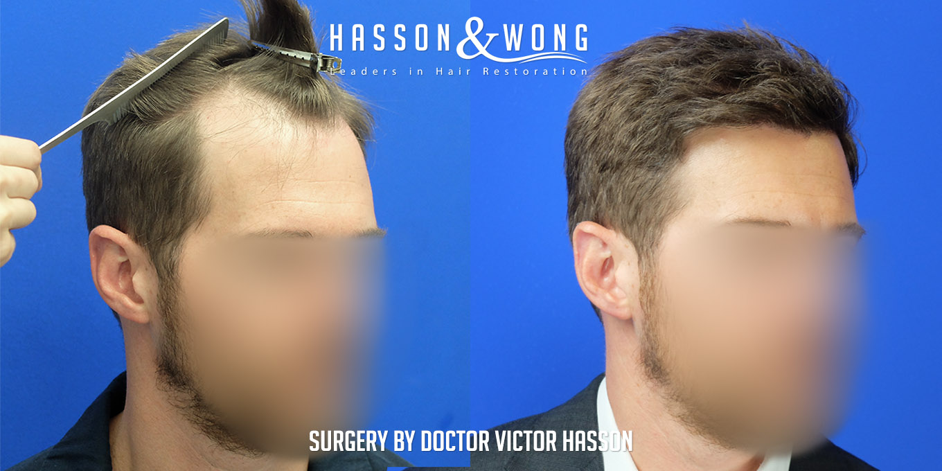 FUE hair transplant before and side by side right temple after 4035 grafts