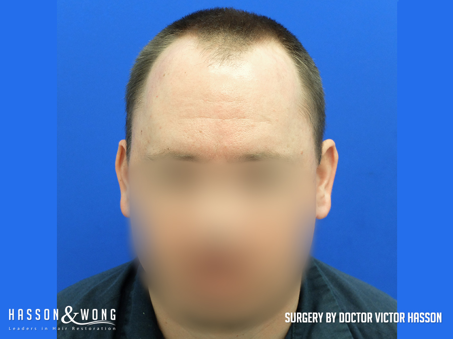 3055 grafts FUE hair transplant before front view