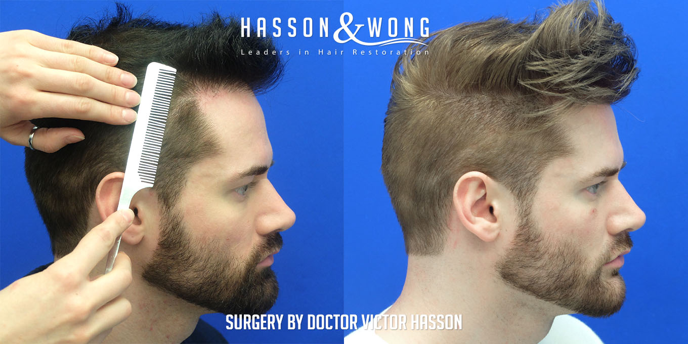 Hair transplant surgery 2000 FUE hair transplant side by side right view