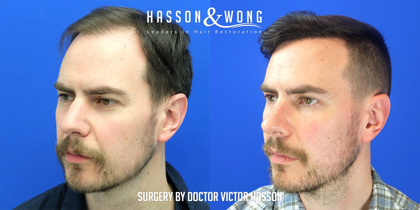 left temple before and after FUE hair transplant comparison after a 3000 graft surgery