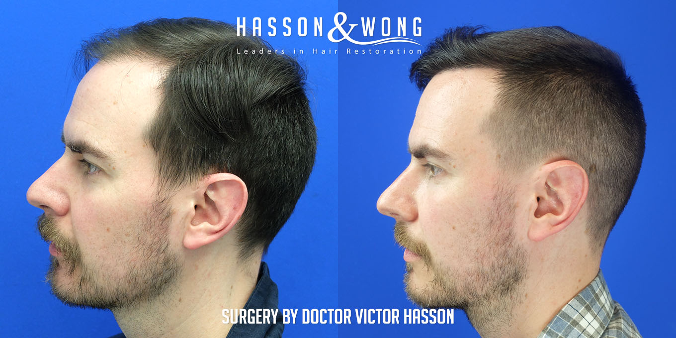 left side of head before and after FUE hair transplant comparison after a 3000 graft surgery