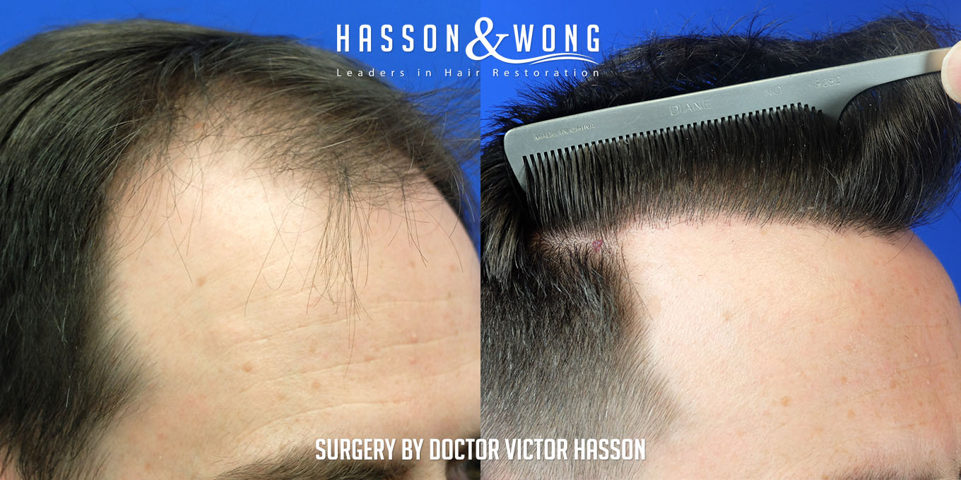right temple close up before and after FUE hair transplant comparison after a 3000 graft surgery