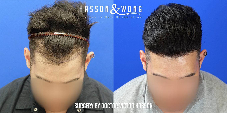 3500 fue hair transplant grafts photos