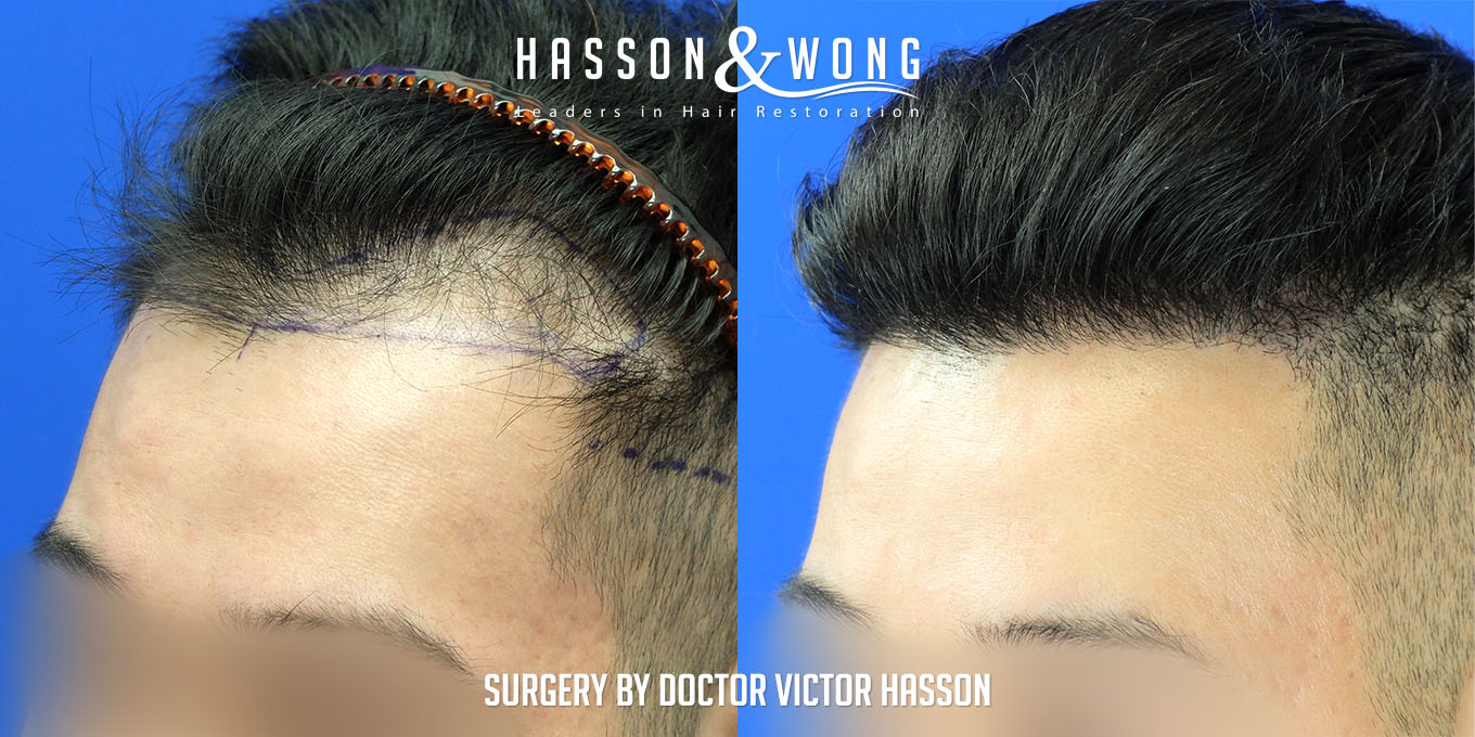fue hair transplant 3500 grafts hairline and temple
