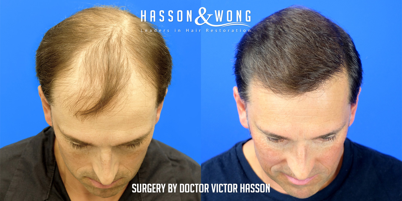 hair-transplant-patient-before-after-crown-work-and-frontal-area