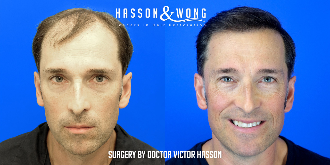 hair transplant before and after of crown and frontal zone of head
