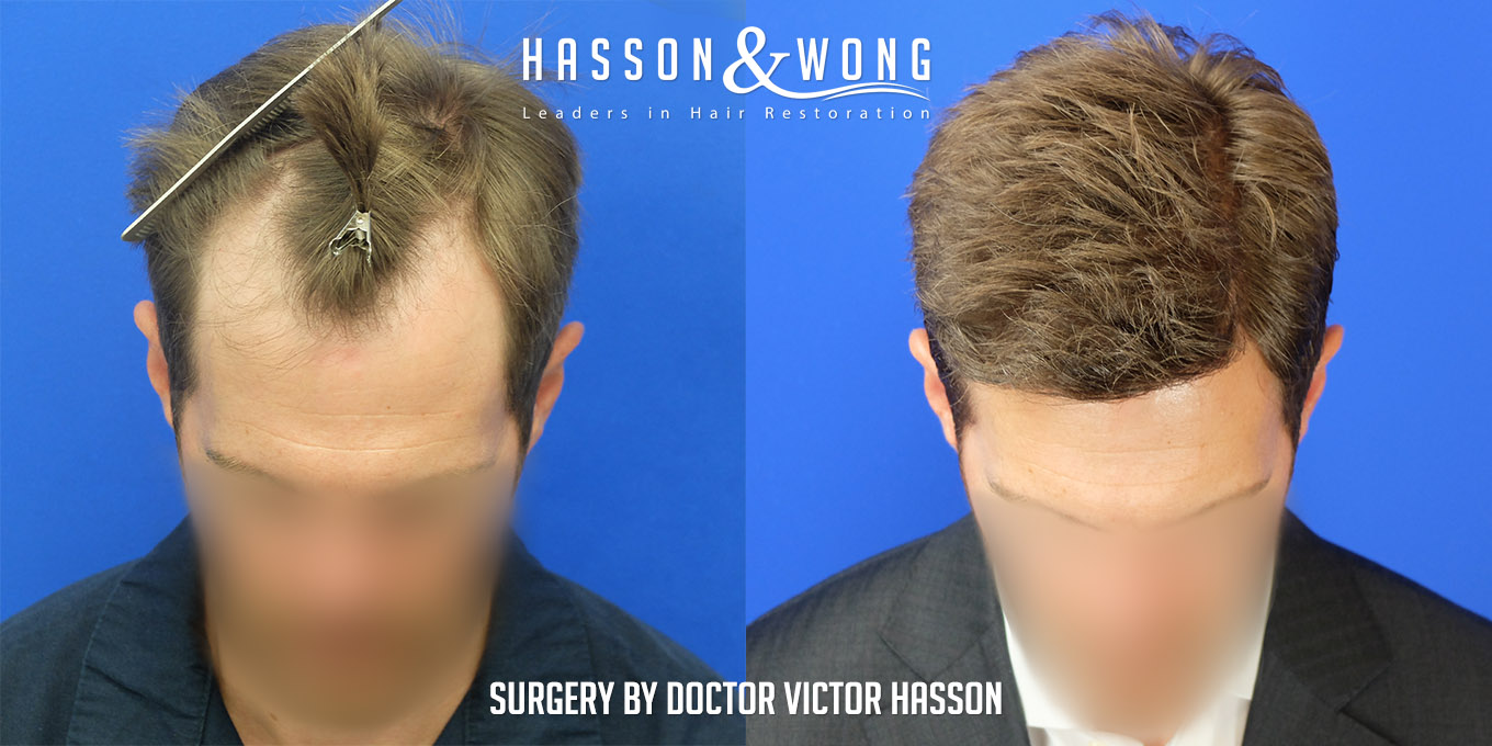 FUE hair transplant before after photos tilt view front 400 grafts