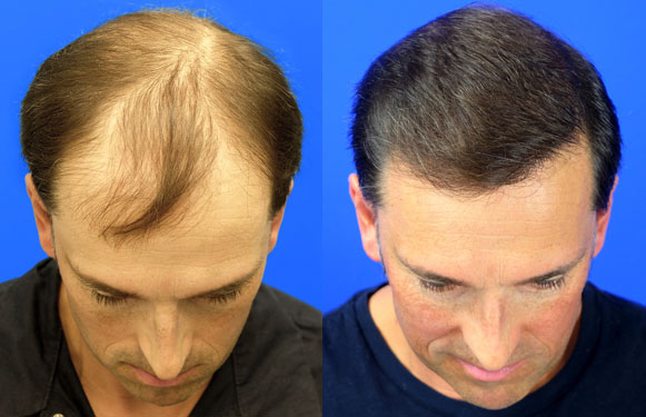 vancouver hair transplant before and after surgery
