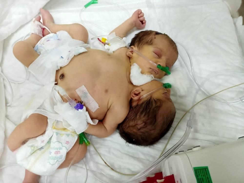 Afrinli yapışık ikizler Hatay'a getirildi