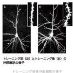 IMトレーニングは発達障害に効く? 脳神経回路を増やす?