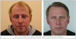 Hair Transplant Results. Hattingen Hair Transplantation (4)