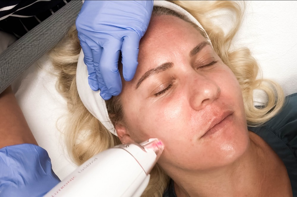LaseMD Laser Facial Treatment