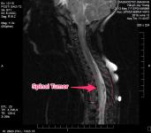 Spinal Tumor - June 2016