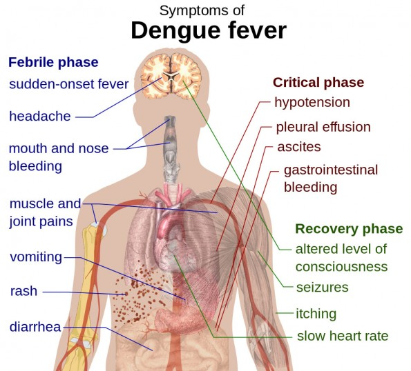 Schematic depiction of the symptoms of dengue fever
