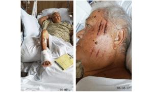 Bernice in hospital