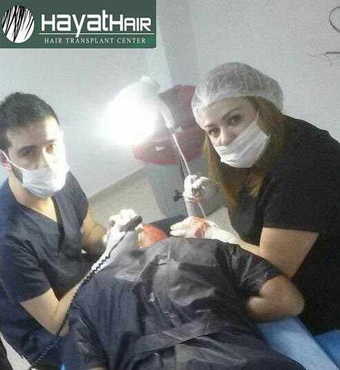عملية زراعة الشعر في تركيا