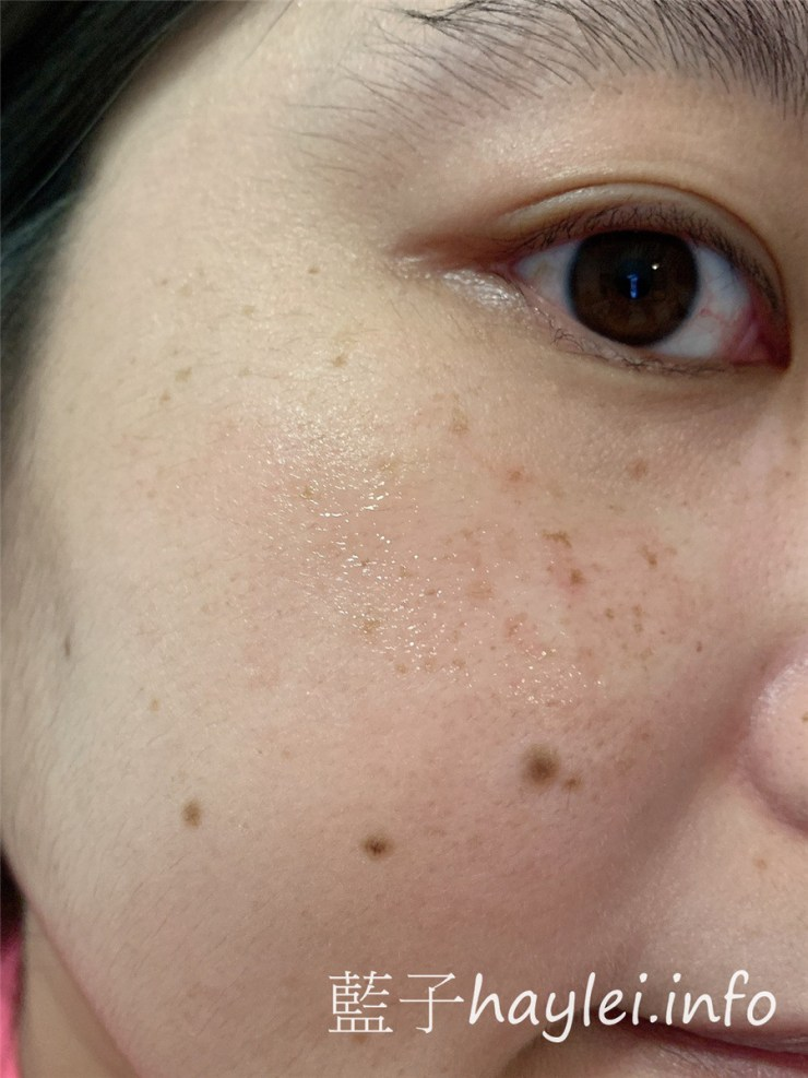 AIVÍA艾微漾/皙漾光微針淡斑貼片-與皮膚科權威邱品齊醫師共同開發,以玻尿酸為主體,添加穀胱甘肽、維他命B3、傳明酸的兩段式金字塔微針貼片保養,14天貼近你的無瑕美肌!肌膚保養/居家便利保養/一撕二貼三輕壓/無需恢復期/淡斑實測/藍子愛保養 保養品分享 彩妝品 彩妝品分享 攝影 民生資訊分享