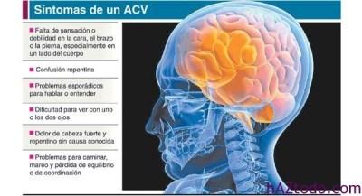 ACV y arritmia