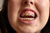 Blog teeth (3)