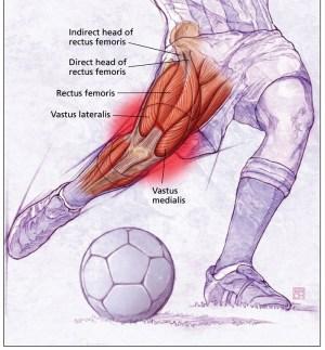 Surgical Repair of Rectus Femoris Tear | Sports Surgeon