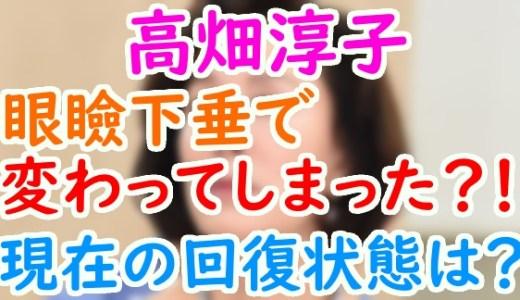 高畑淳子が眼瞼下垂の手術前後で顔が違う?病状や現在の回復状態は?