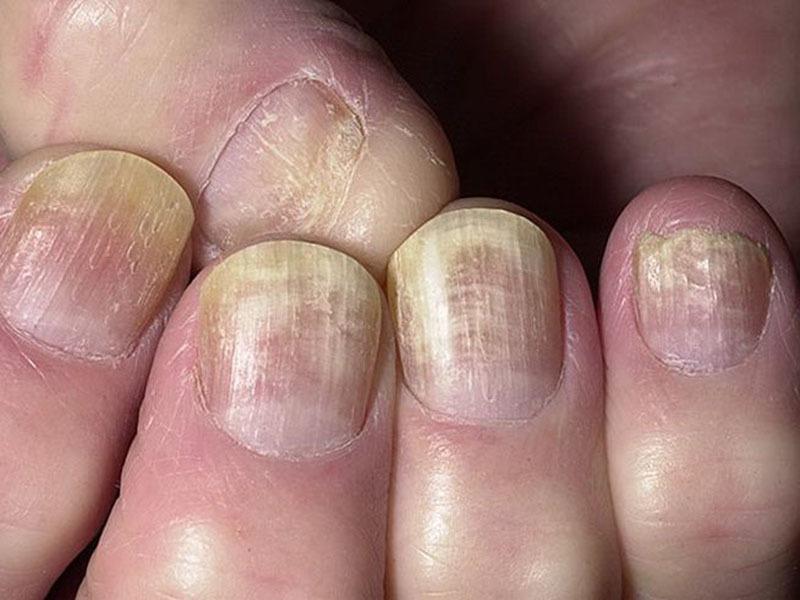 곰팡이 후에 손톱을 덜어줍니다