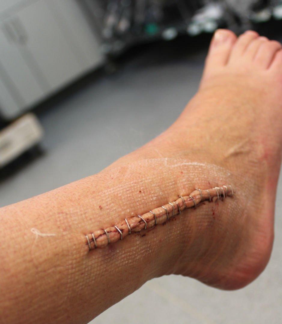 Как снимают хирургические швы на ноге?