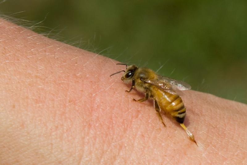 tratamentul înțepăturii de albine a articulațiilor unguente care ameliorează spasmul muscular în osteochondroza cervicală