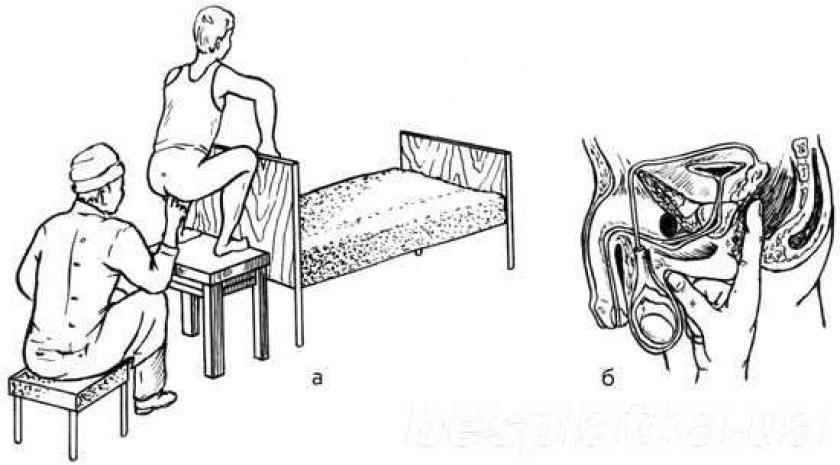 Как делать массаж простатиты в домашних условиях какая кровь при простатите
