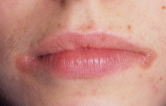 scoateți grăsimea buzelor)