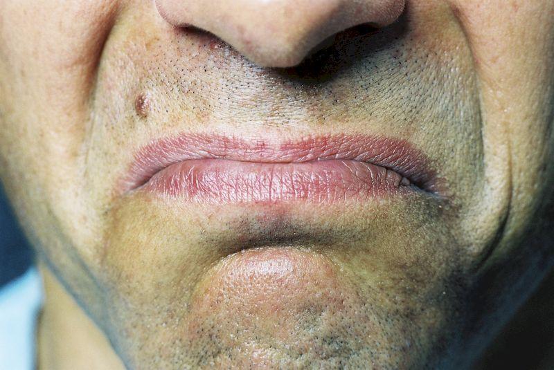 Металлический привкус во рту: 5 причин появления и способы лечения