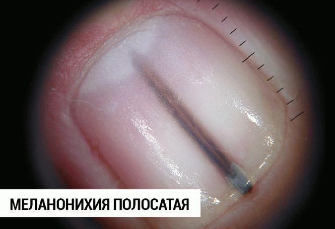 5_result