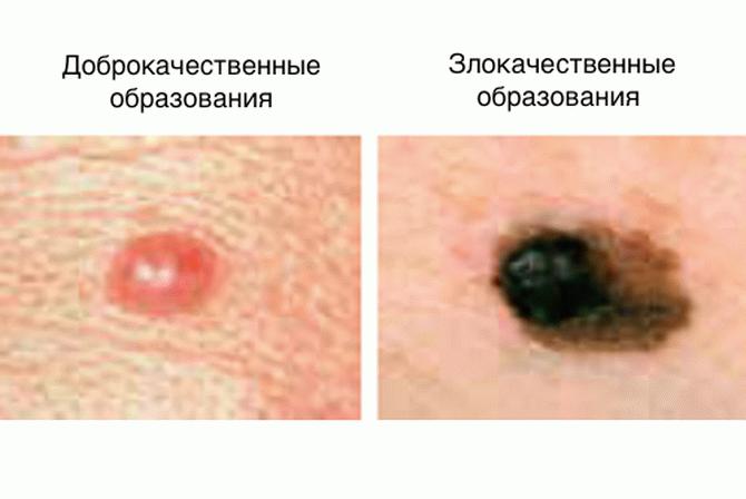 21_result