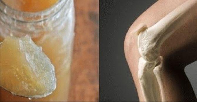 удаление бурсит локтевого сустава видео