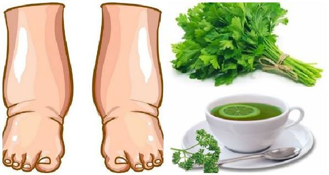 powerful-home-made-tea-will-cure-swollen-legs-days_result