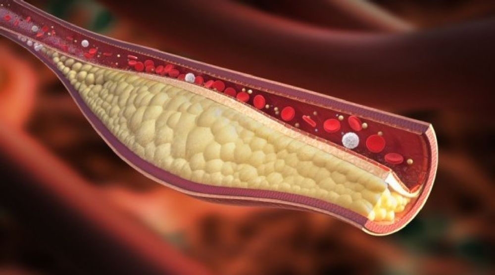 unclog-arteries_result
