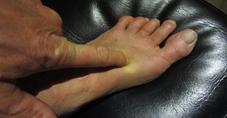 Здоровье в ногах: один маленький секрет сократит походы к врачу! Целебная альтернативная медицина