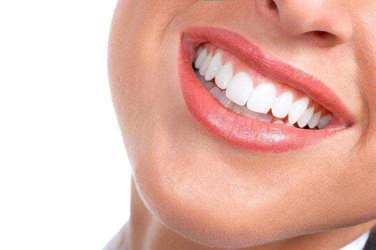 Она покрыла зубы пищевой фольгой. Вот как они выглядят после