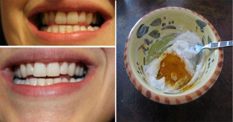 Домашняя отбеливающая зубная паста: противовоспалительное средство без химии сделает вас красивым зубастиком