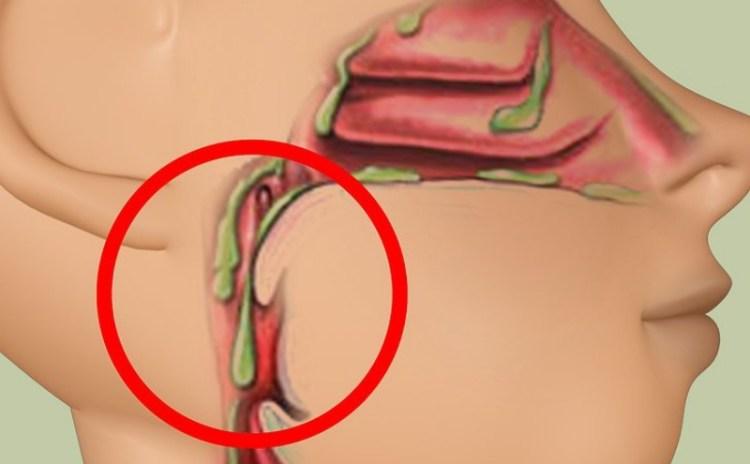 Как избавиться от скоплений бактериальной слизи в дыхательных путях без химии