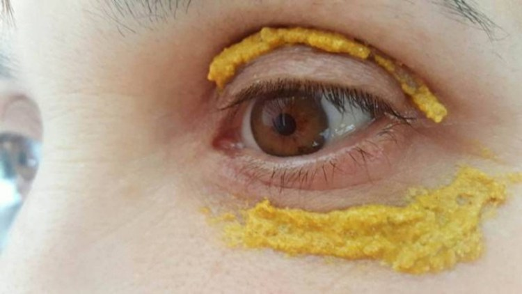 Как избавиться от темных пятен под глазами с помощью куркумы