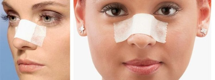 Пластика носа: моделирование формы и исправление недостатков
