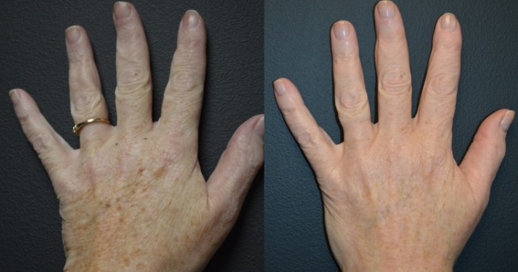 Как защитить руки от старения: простой домашний рецепт и кожа молода, как никогда раньше