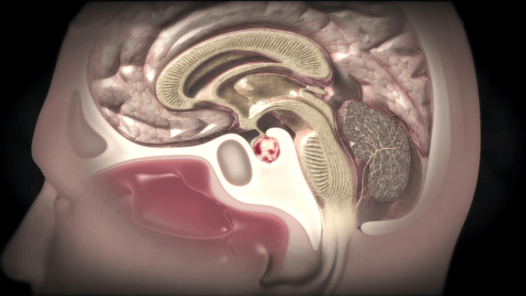 Важные симптомы, которые помогут вовремя распознать опухоль головного мозга