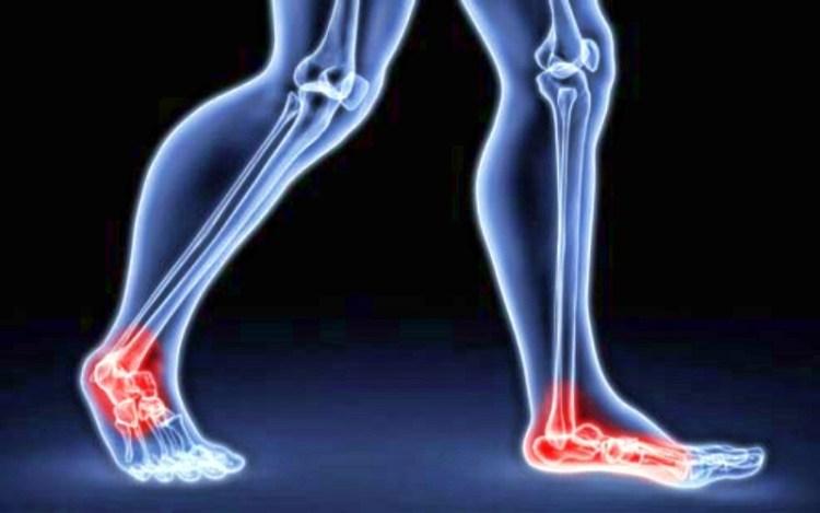 Растирка от боли в суставах: сработает против хруста в коленях и ломоты в позвоночнике