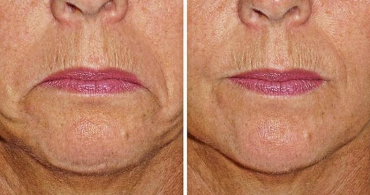 Простые упражнения для мимики помогут с легким напрягом подтянуть уголки губ