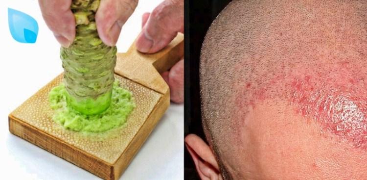 Лечим выпадение: васаби может дарить не только остроту вкуса, но и надежду вашим волосам