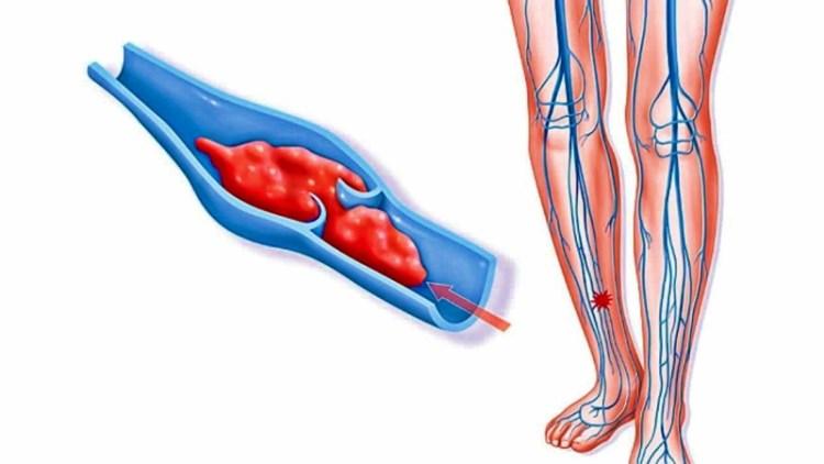 Если достал варикоз: целебный рецепт снадобья, способного растворять тромбы